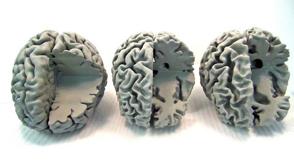 3D-printed brains reveal Alzheimer's secrets